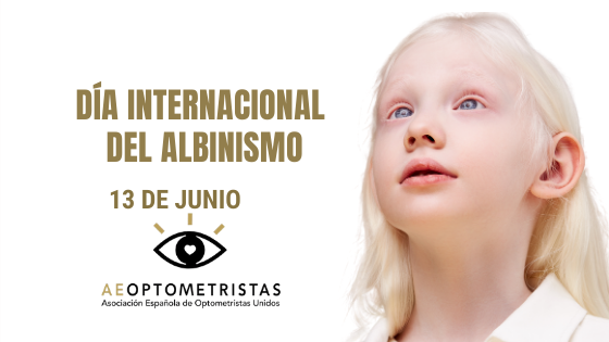 El albinismo y la salud visual