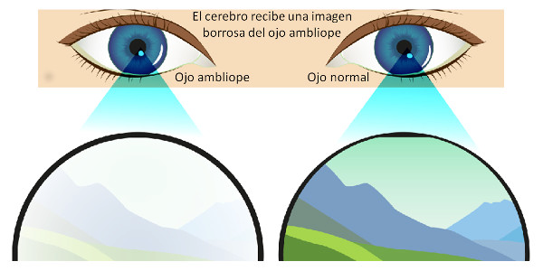 Imagen ¿Qué es el ojo vago o ambliopía? Síntomas, causas y tratamiento de la ambliopía | Asociación Española de Optometristas Unidos
