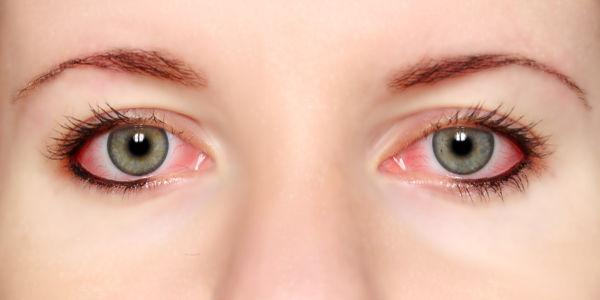 Imagen Conjuntivitis: qué es la conjuntivitis, síntomas, causas, tratamiento y prevención | Asociación Española de Optometristas Unidos