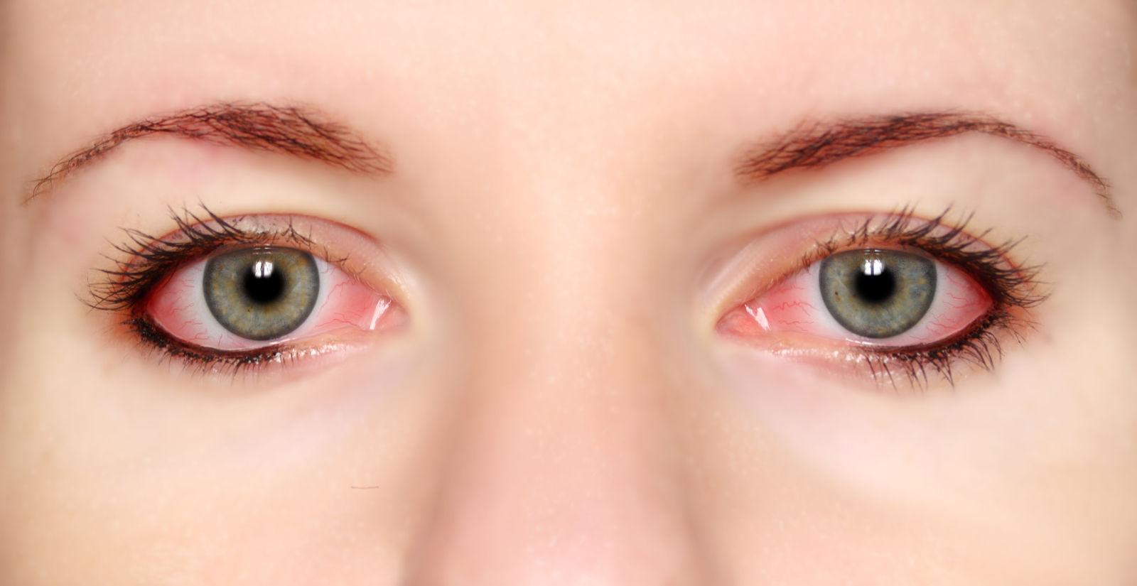 Detalle de dos ojos con conjuntivitis