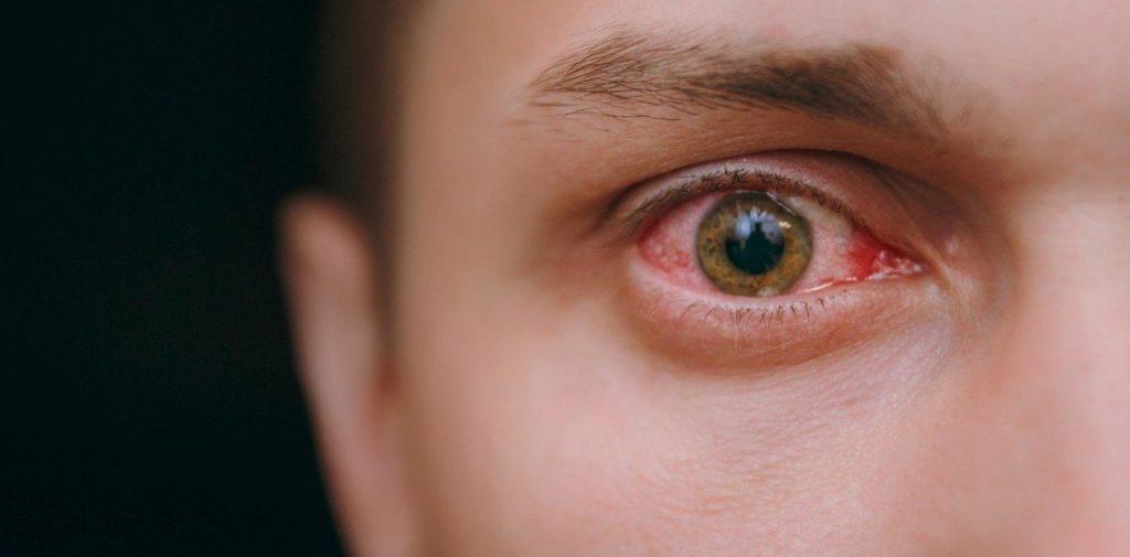 El Covid-19 y la salud visual