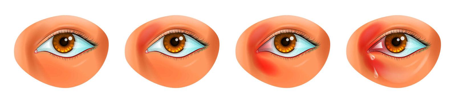 Saco tratamiento ocular de