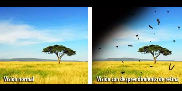 Imagen Desprendimiento de retina: qué es, síntomas, causas, diagnóstico y tratamiento? | Asociación Española de Optometristas Unidos