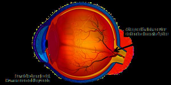 Imagen El glaucoma, la enfermedad silenciosa: ¿qué es el glaucoma, sus síntomas, su prevención y control? | Asociación Española de Optometristas Unidos