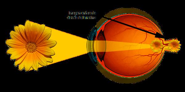 Imagen Hipermetropía: ¿qué es la hipermetropía, síntomas, causas, tratamiento y control? | Asociación Española de Optometristas Unidos