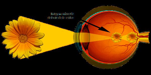 Imagen La miopía: ¿qué es la miopía, sus síntomas, su tratamiento y control? | Asociación Española de Optometristas Unidos