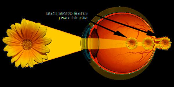 Imagen El astigmatismo: ¿qué es, tipos de astigmatismo, tratamiento y compensación? | Asociación Española de Optometristas Unidos