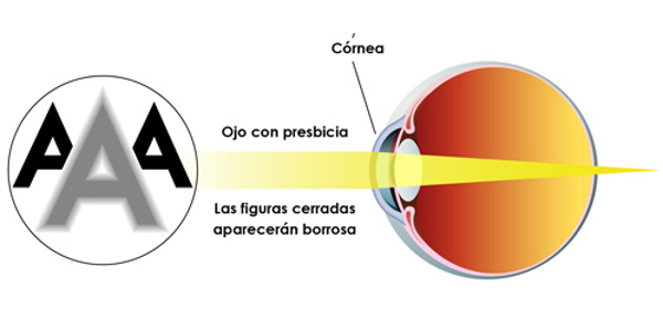 Imagen Presbicia o vista cansada: ¿qué es la presbicia, síntomas, causas y tratamiento? | Asociación Española de Optometristas Unidos